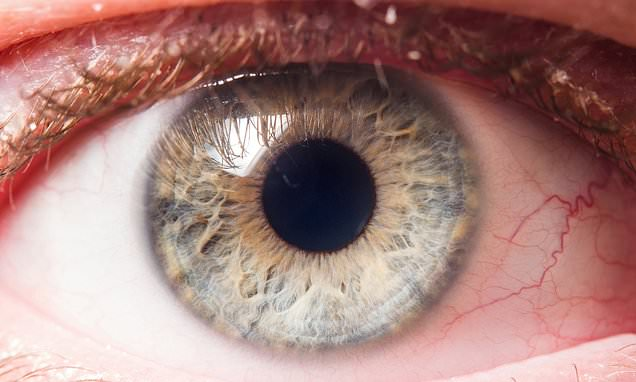 Fewer blood vessels in the eye may be a sign of Alzheimer ...